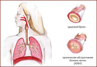 Лечение бронхита прополисом