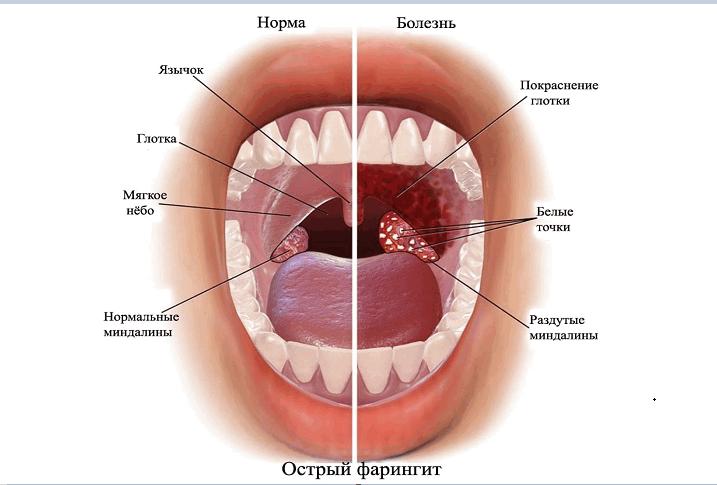 Лечение фарингита прополисом1