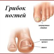 Лечение грибка прополисом