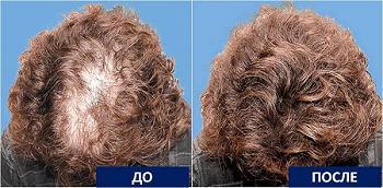 Алопеция волос