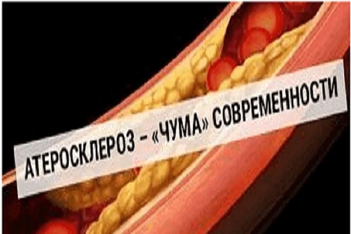 Методы - лечения-атеросклероза - апифитопродуктами