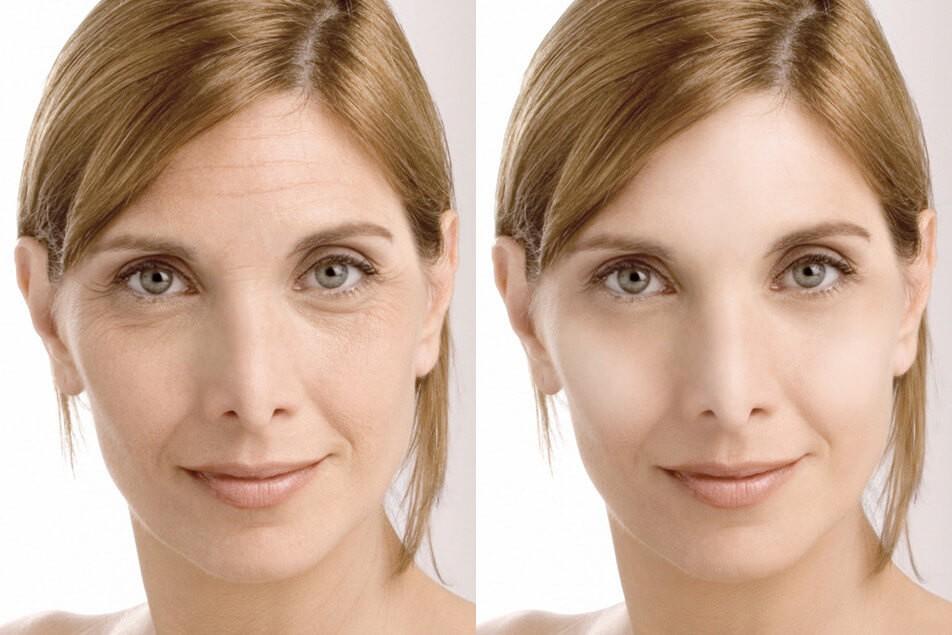 ANTI AGE - Ваше лицо вновь обретает свежесть, гладкость и сияние!