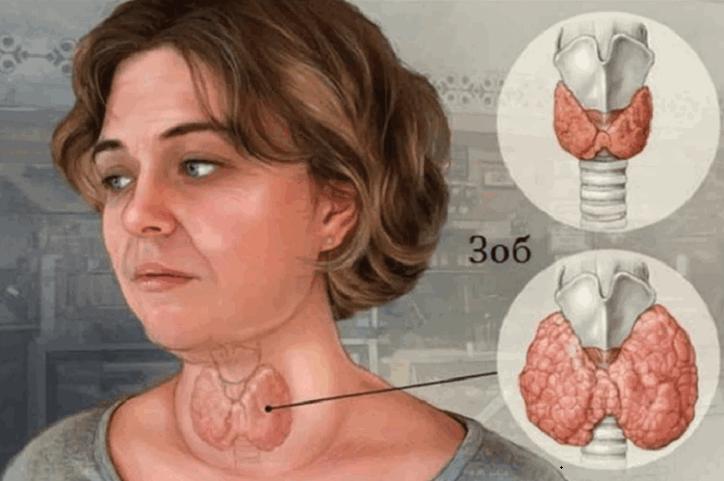 Щитовидная железа, лечение пчелопродуктамиpng